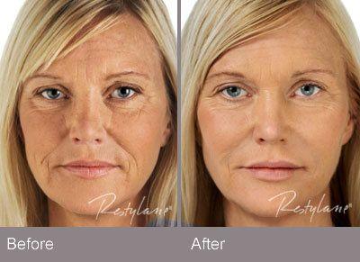 Restylane to restore skin volume 3