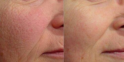 Laser Genesis Skin Resurfacing 4