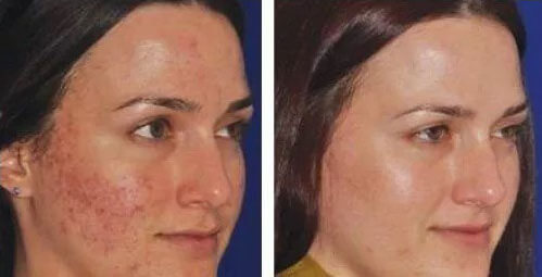 Micro-Needling for reduction of acne scars & pores - New 3