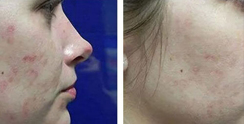 Micro-Needling for reduction of acne scars & pores - New 4