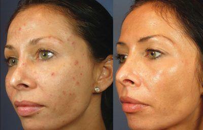 VI Peel: The 7 Day Skin Transformation System. 4