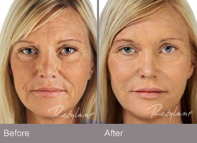 Before and After – Restylane