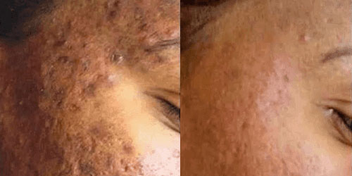 Before and After: Microneedling