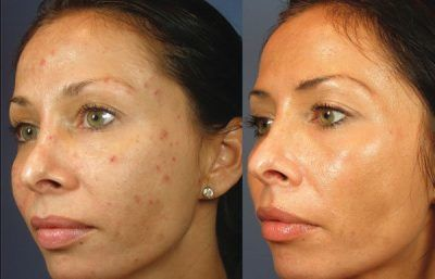 Before and After – Chemical Peels
