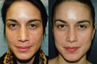 Before and after Chemical Peels - Tamra Bedford, Cosmetic RN